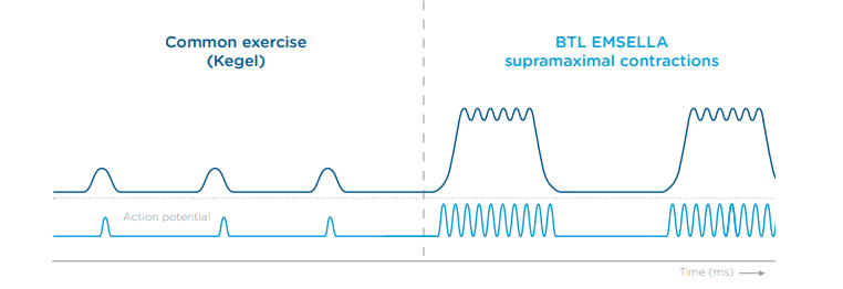Graph chowing the difference in intensity of supramaximal contractions versus Kegel contractions