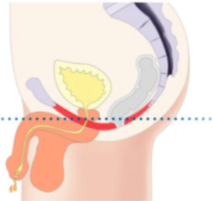 Illustrations of male pelvic floor with weak muscles - Corelife wellness
